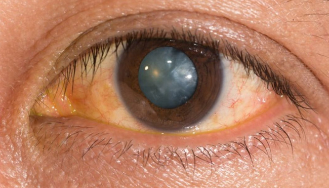Recognize the Symptoms of Cataracts